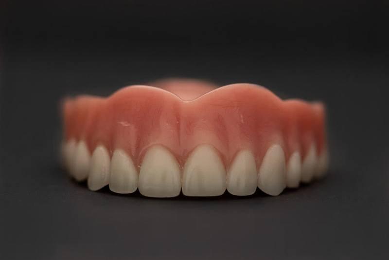 How Do Denture Implants Work in Sacramento
