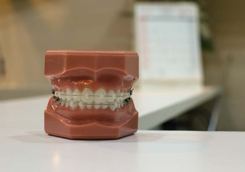 Is Invisalign Cosmetic Dentistry