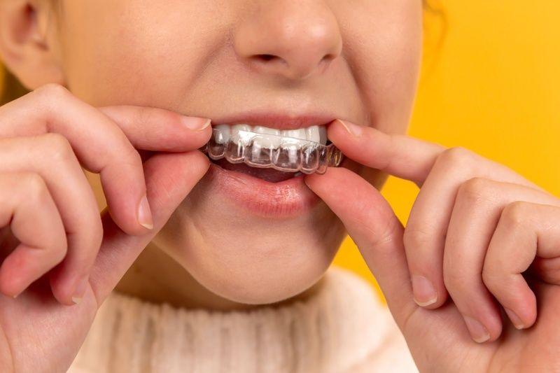 Taking Your Child to-Pediatric Dentist in Sacramento