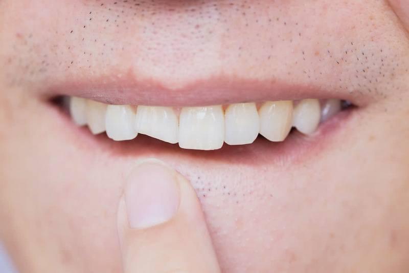 Chipped Tooth Sacramento