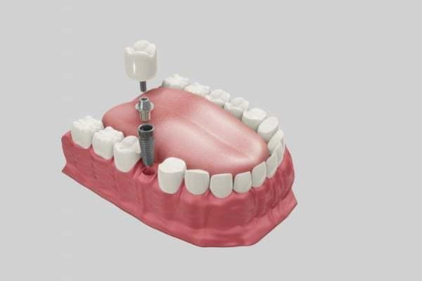 Dental Implants Treatment Illustration Sacramento