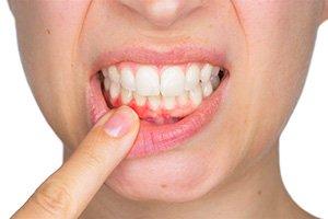 Gum Disease Sacramento