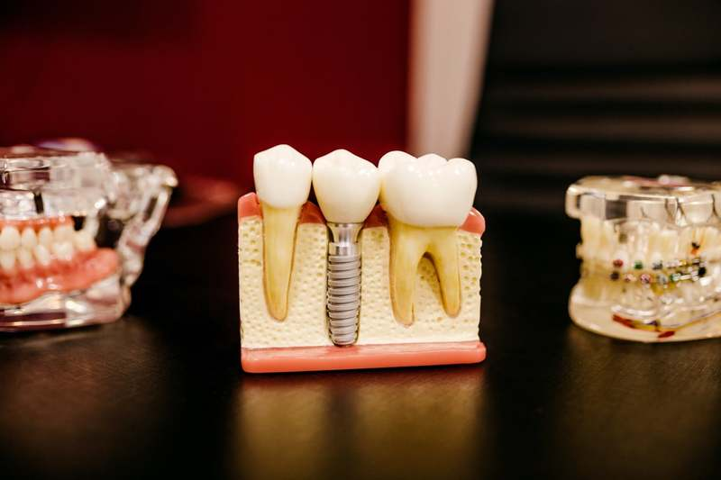 Tooth Post Implant